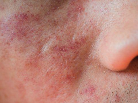 allergic dermatitis skin on face