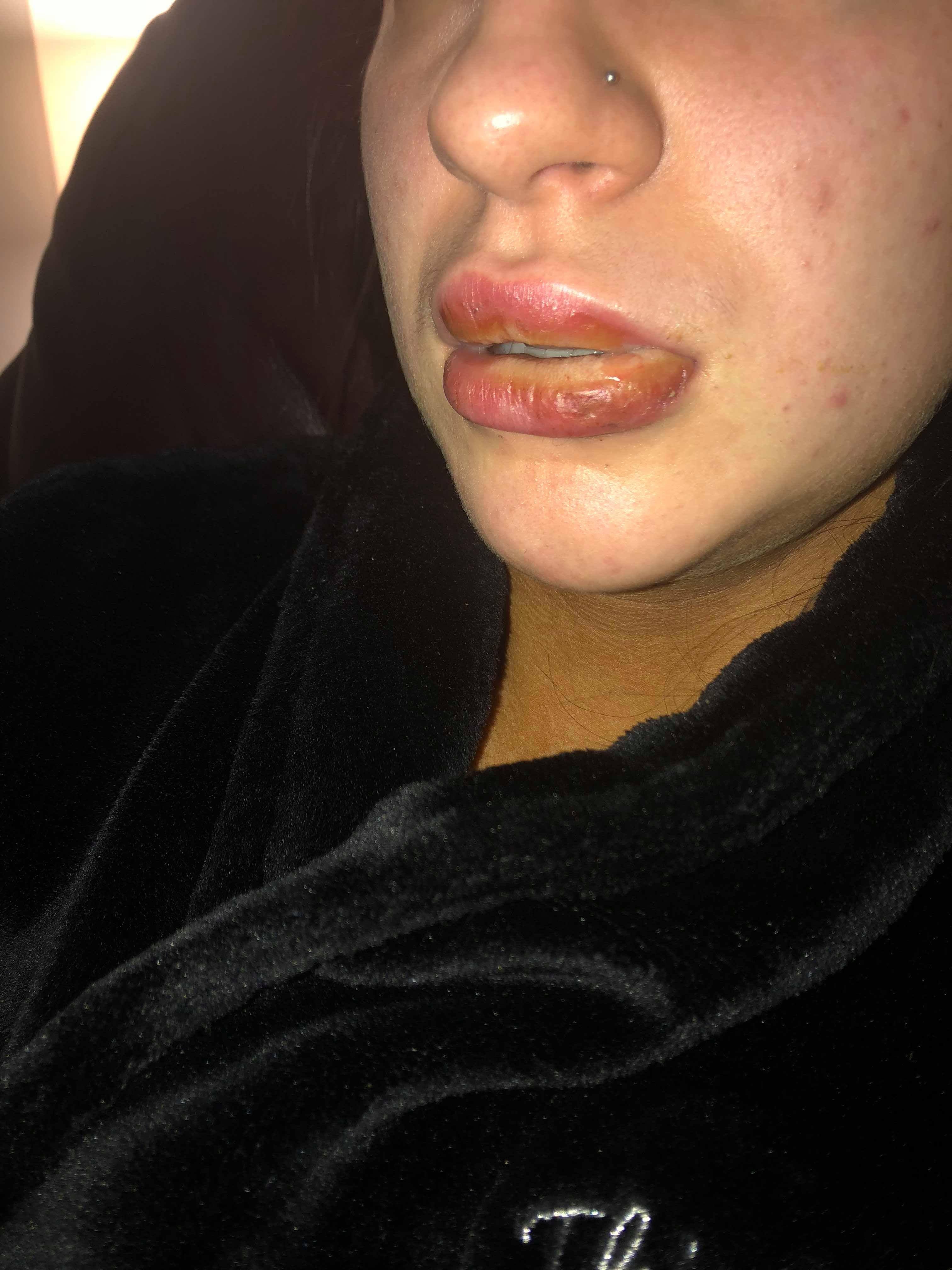 Dva dny po použití fejkové rtěnky Kylie otok lehce opadl
