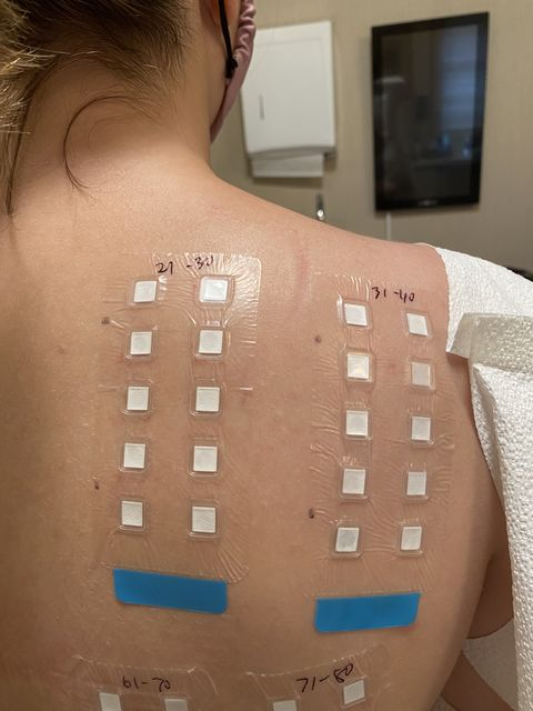 my allergy patch test