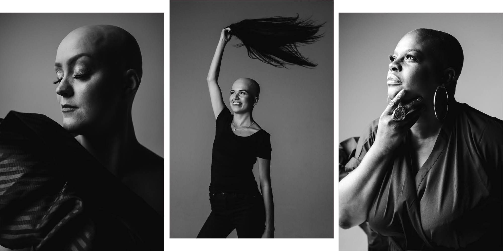 6 women get real about living with alopecia