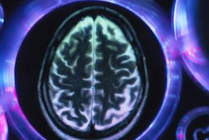 Alzheimers and dementia research, a brain scan in multi well tray used for research experiments in laboratory