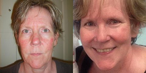 8 women reveal what it s like to live with rosacea prevention