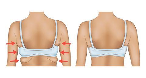 手臂瘦不下來怎麼辦?瑜珈老師示範3個有感「手臂運動」