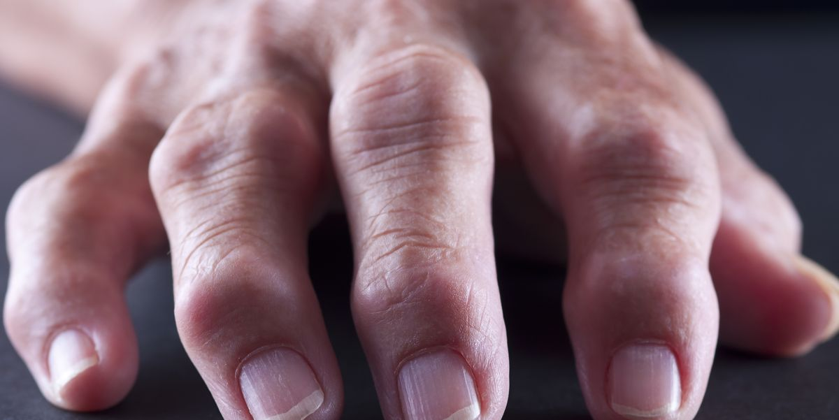 11 Causes of Swollen Fingers - Why Your Fingers and Hands Swell