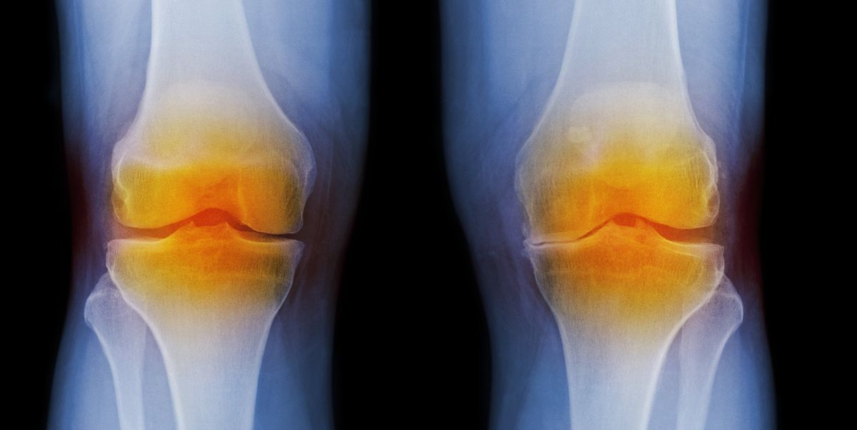 5 Natural Osteoarthritis Treatments to Relieve Joint Pain Instead of Painkillers
