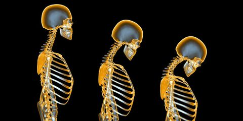 What you should know about osteoporosis and osteopenia