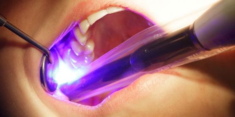 Cavities--and three more surprising diseases--could be contagious