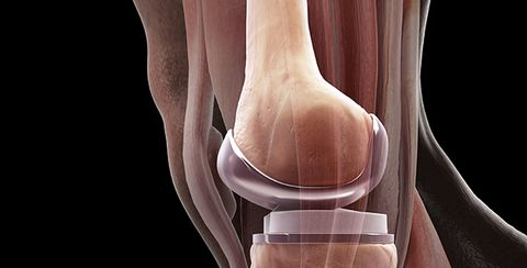 9 Things No One Ever Tells You About Getting A Knee Replacement