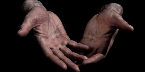 Callused hands from the gym