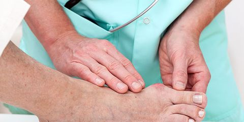 How Likely Are You to Develop Bunions?