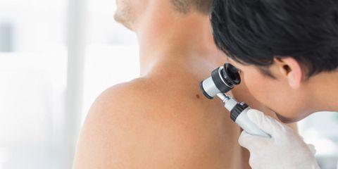 man getting mole examined