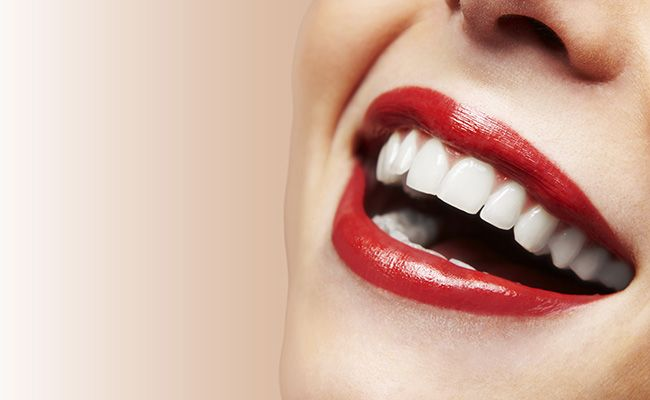 Tooth Whitening Mistakes And Myths | Prevention