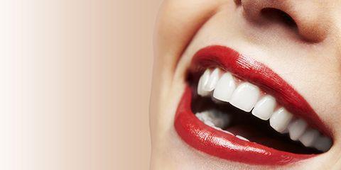 teeth whitening mistakes