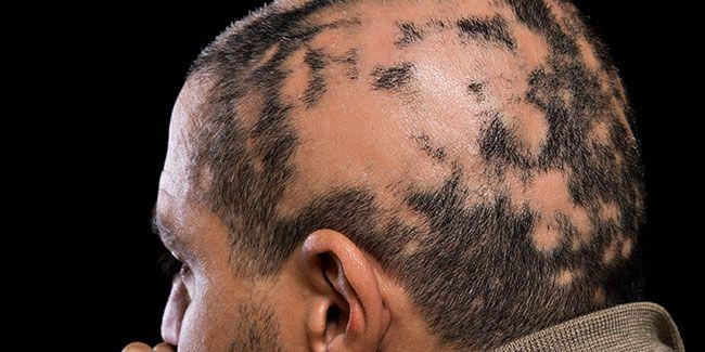 alopecia areata facts
