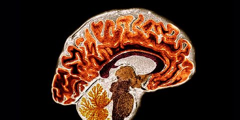 Your Brain On Menopause