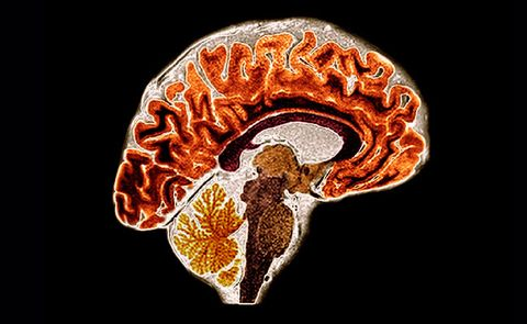 Menopause Brain Effects | Prevention