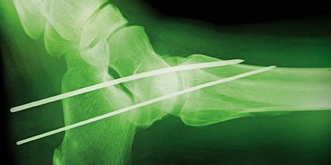 mentally heal form injury