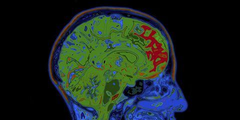 CTE concussion scan