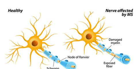 Multiple Sclerosis Facts