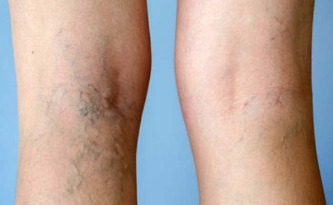 19 Natural Remedies For Varicose Veins