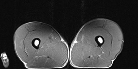 MRI of leg muscle of 70-year-old triathlete.