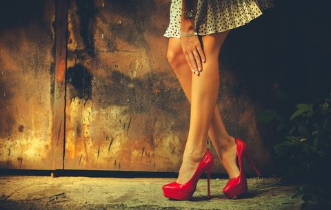 8 Things Every Woman Should Know About Varicose Veins