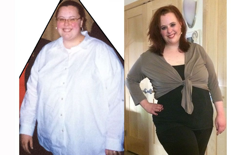 Weight Loss Surgery Was A Mistake Prevention
