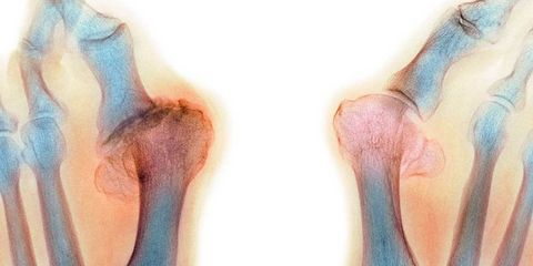 Bunion Surgery Facts