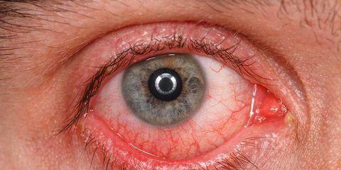 pink eye dermatologist