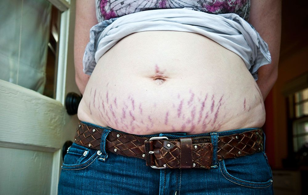 7 Things You Need To Know About Treating Stretch Marks Prevention