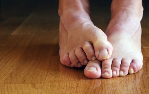 Your Grossest Feet Problems, Solved