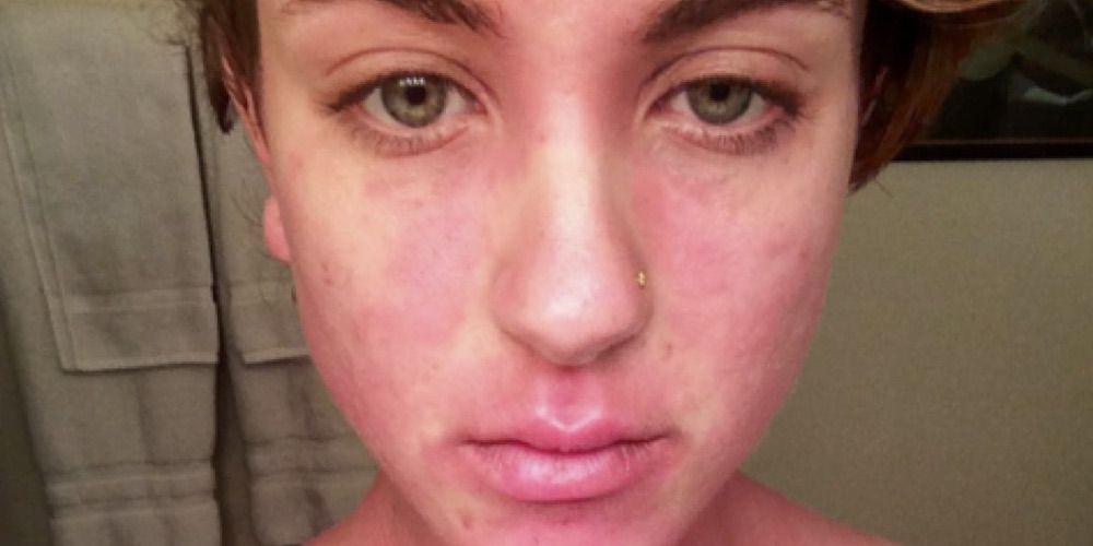 Severe Psoriasis Instagram Photos Prevention