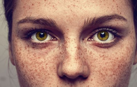 What All Women With Freckles Need To Know Women S Health