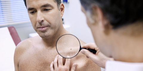 hairy mole skin cancer