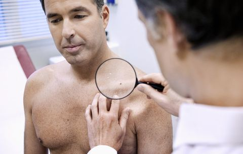 What Does a Hairy Mole Mean? | Men's Health
