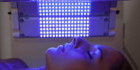 blue light acne