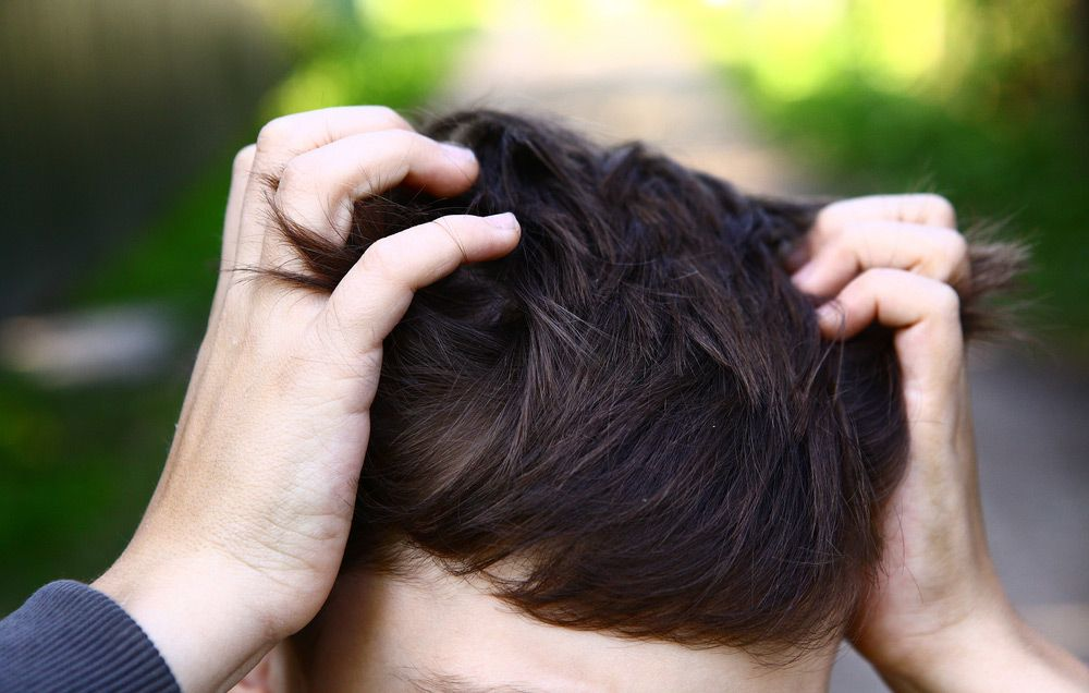 How To Get Rid Of Head Lice Men S Health