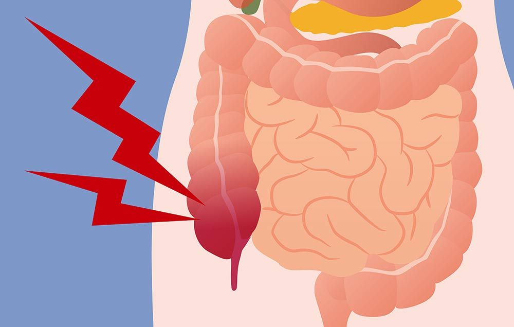 This Is What Appendicitis Really Feels Like | Prevention