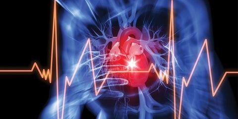 heart attack ekg
