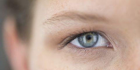 top causes of wrinkles