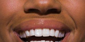 Lip, Cheek, Brown, Skin, Chin, Tooth, Eyebrow, Eyelash, Facial expression, Beauty,