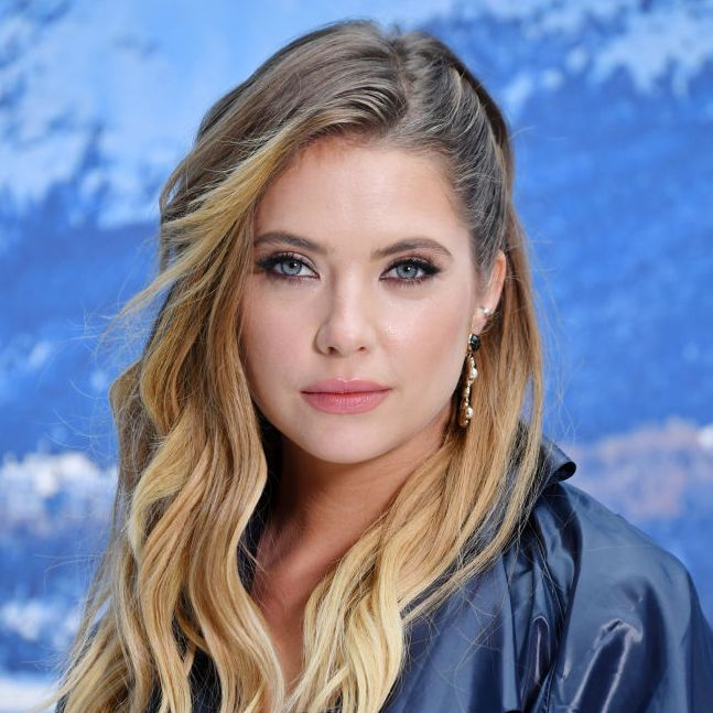 "Ashley Benson Ashley has been pretty open about dealing with acne. She shared a photo of herself on Instagram with zit-fighting cream on her face, noting that ""It's the new trend."""
