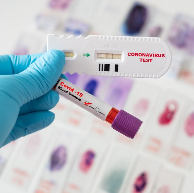 symptoms warrent covid 19 test