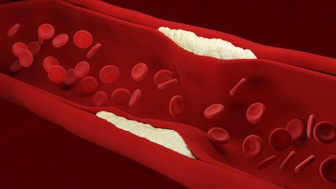 動脈硬化 イメージ