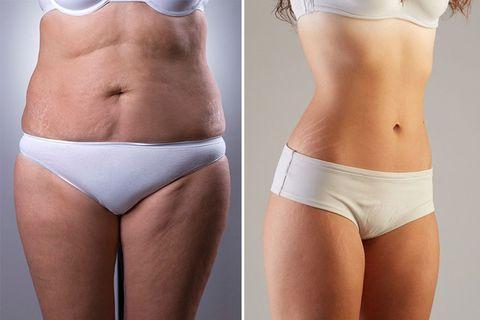 消除橘皮組織,5大錯誤迷思,減肥減脂,飲食控制,beauty