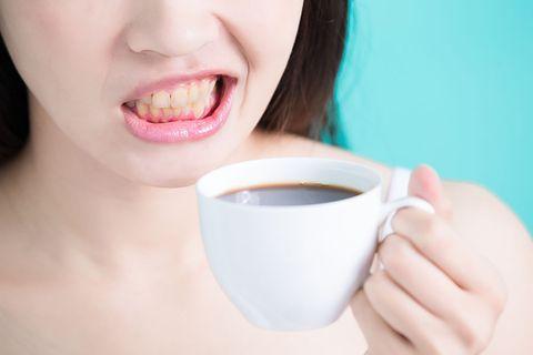 牙齒美白療程,避免黃牙, 琺瑯質,醫美, beauty