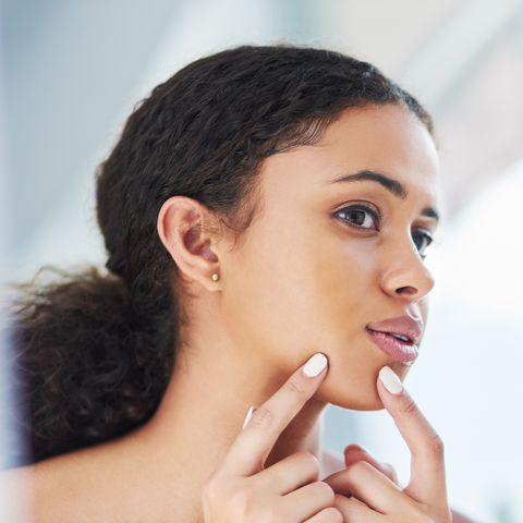 How To Get Rid Of Pimples Fast Quick Ways To Eliminate Zits Acne