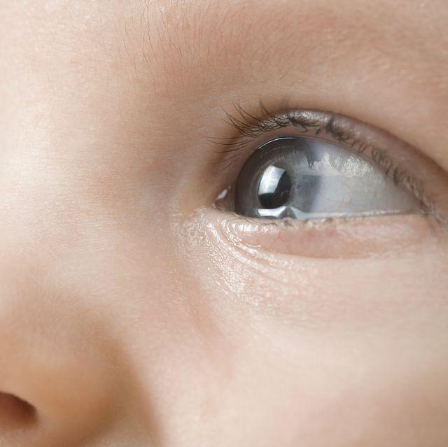 qué tipo de médico ver para la infección ocular