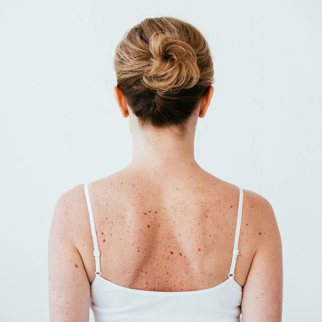 back view of woman with melanoma on diseased skin isolated on white
