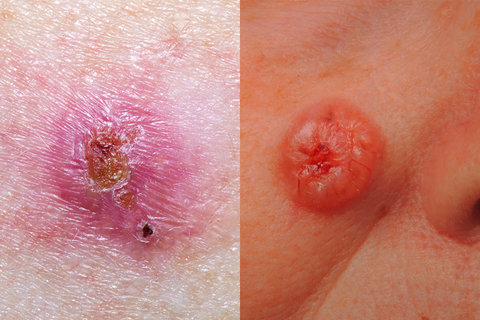 wart on leg skin cancer